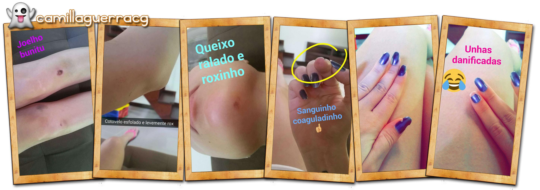 snap-snapchat-camillaguerracg-camilla-guerra-patinação-artística-hematomas-queda-machucado-curso-resultado-do-curso